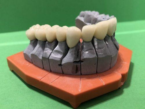 Brücke - DentAll 4 One